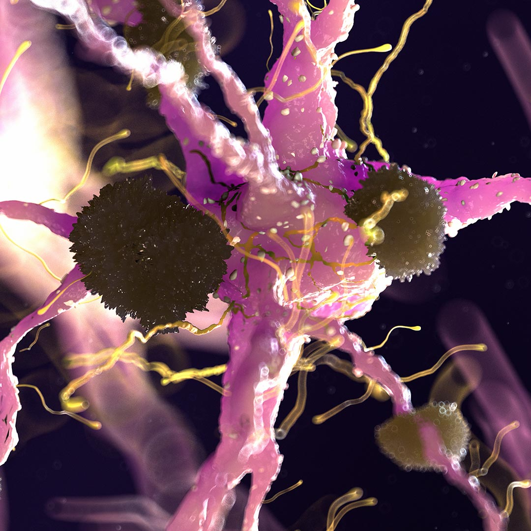 A New Way Inflammation Causes Alzheimer's Disease in ApoE4 - Breaking News (April 2020)